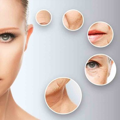 dermal filler treatment image